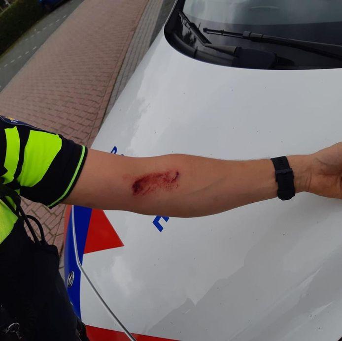 Een 32-jarige man zag uiteindelijk kans een agent hard in zijn arm te bijten.