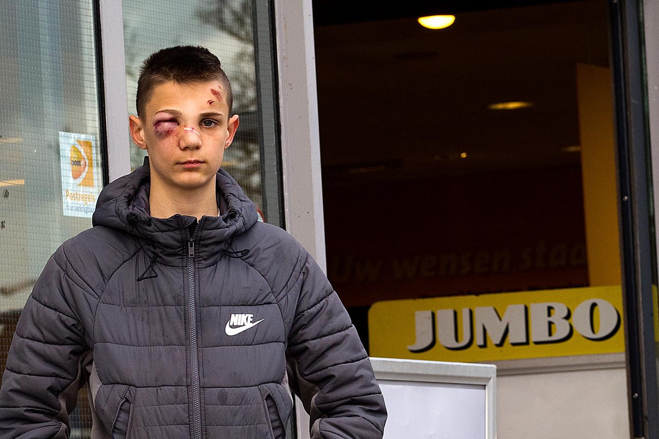Dinand de Groot (14) de dag na de mishandeling bij de Jumbo in Sliedrecht. Hij liep onder meer een hersenschudding op.