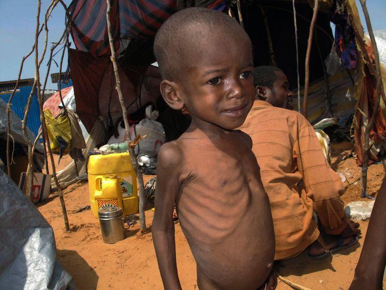 Een uitgehongerd Somalisch kind. Beeld ap