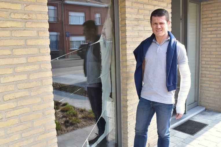 Bewoner Bjorn Vanheule (40) liep brandwonden op aan vrijwel z'n hele linkerarm. Hij staat naast het raam waarvan het moderne gordijn ook in brand stond.