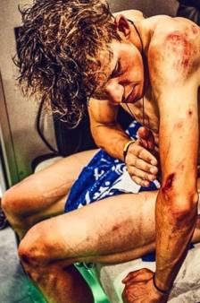 Zo ziet het lichaam van Bob Jungels eruit na de kasseienrit