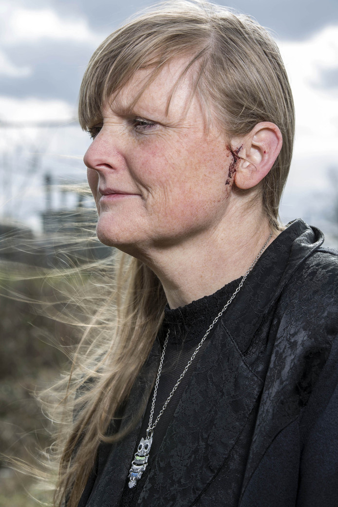 Frederique Abbring en de wond bij haar oor na de aanval van de oehoe.