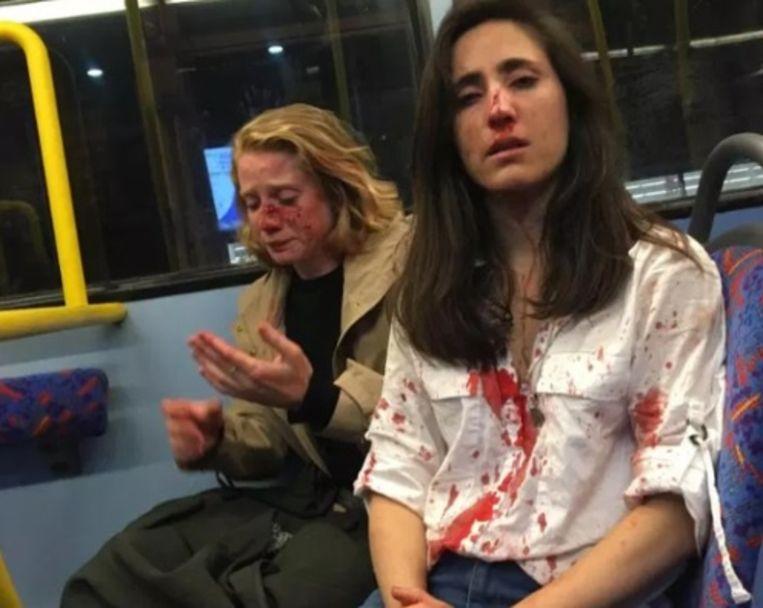 Melania Geymonat (rechts) en haar vriendin Chris werden in elkaar geslagen op een Londense stadbus.