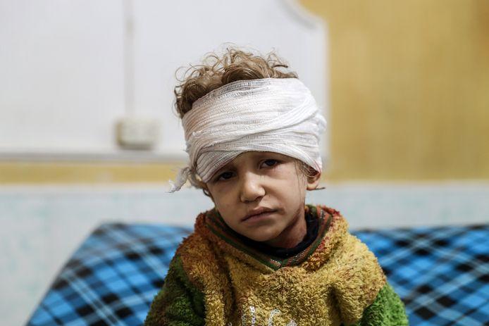Een kind uit Oost-Ghouta in Syrië is gewond geraakt bij een aanval.