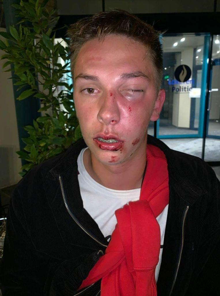 Bruce Willems (19) kreeg rake klappen te verwerken tijdens de laatste nacht van de Lokerse Feesten.