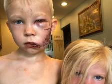 Un petit garçon de 6 ans défiguré en sauvant sa sœur de 4 ans de l'attaque d'un chien