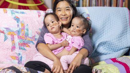 Deze siamese tweeling werd succesvol gescheiden