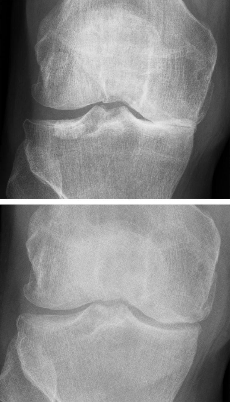 Voor (bovenste foto) en na de kniedistractie: er is weer enige ruimte tussen de botuiteinden, ruimte die daar alleen kan zitten als er kraakbeen is gevormd. Beeld