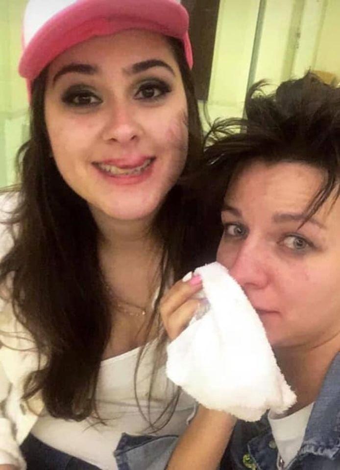 Ana Camboim (links) en Katya Sazanova (rechts) liepen onder meer verschillende zwellingen in het gezicht op.