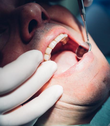 Bientôt des soins bucco-dentaires mobiles en Wallonie?