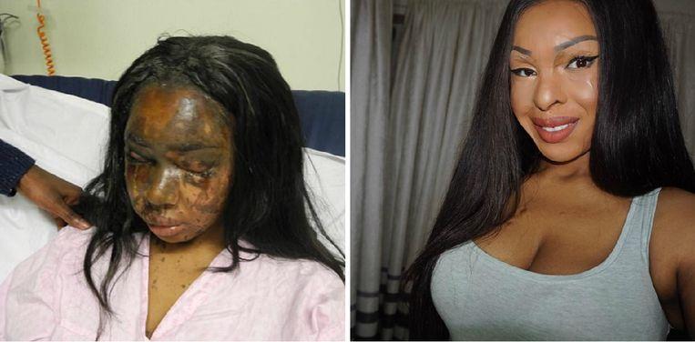 Naomi Oni meteen na de barbaarse aanval en zoals ze er nu -vijf jaar later- uitziet.