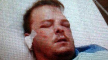 """Slachtoffer van gewelddadige strafexpeditie vraagt schadevergoeding van 25.000 euro: """"Hij werd zo goed als dood geslagen"""""""
