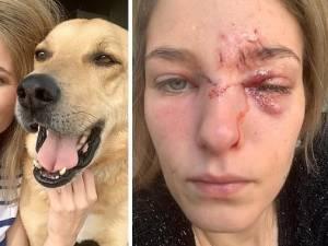 Un mannequin défiguré après avoir été attaqué par son chien