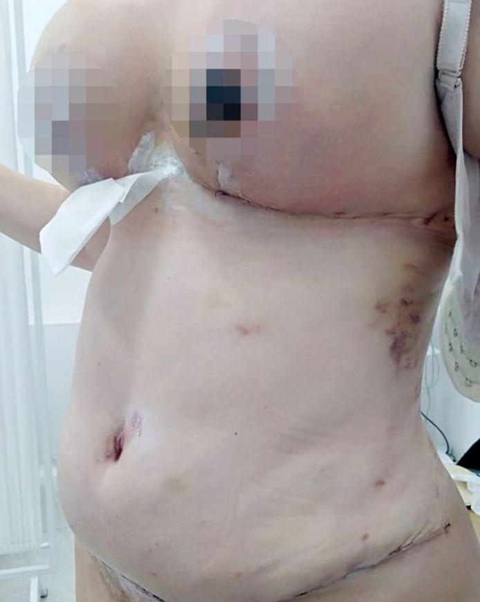 """""""30% de mon mamelon était noir"""" (Lyndsay Colosimo)"""