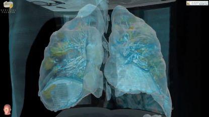 Zo zien gehavende longen coronapatiënt eruit in 3D