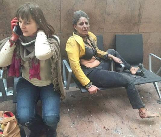 Twee vrouwen zijn gewond geraakt tijdens de explosies op Brussels Airport.