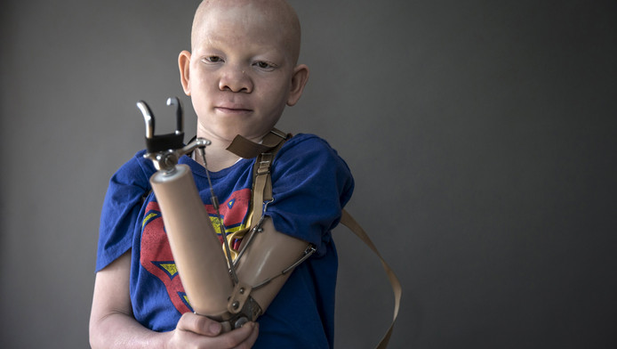 De 12-jarige Mwigulu Matonage uit Tanzania raakte zijn arm kwijt door een aanval