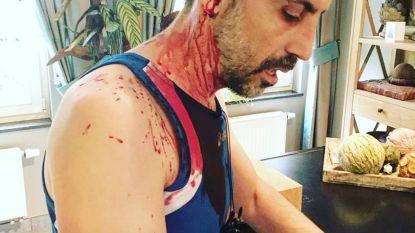 """Buizerd belaagt jogger tot tweemaal toe: """"Opeens voelde ik een slag op mijn hoofd"""""""