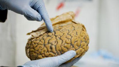 Een typisch mannelijk brein bestaat niet (en kan dus ook geen autisme veroorzaken)