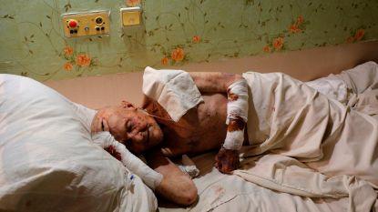 Vier gewonden, onder wie 9-jarig kind, door artillerievuur in Oekraïne
