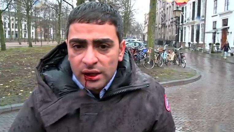 Verslaggever Danny Ghosen hield aan de mishandeling een losse tand, pijn in zijn kaak en een bloedende lip over.