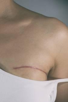 Des tatouages en 3D pour retrouver ses tétons après un cancer du sein