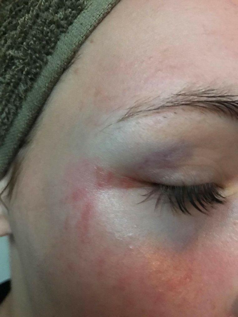 Het 17-jarige meisje liep onder meer aan blauw oog op bij de vechtpartij.