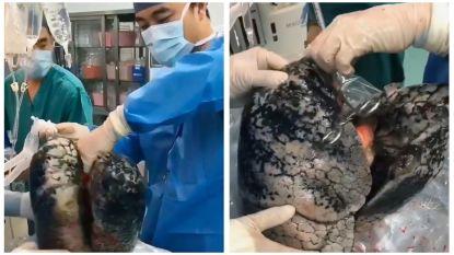 """""""Heb jij nog de moed te roken?"""": Chinese arts deelt schokkende beelden van longen kettingroker"""