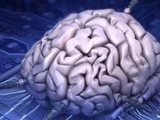 Kempenhaeghe Heeze krijgt 7 ton voor onderzoek met 'mini-breintjes'