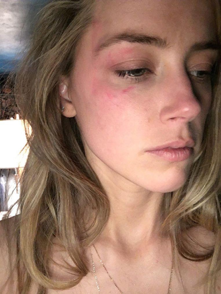 Amber Heard toont haar verwonding.