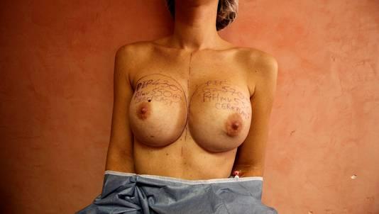 Een patiente vlak voor ze haar PIP- implantaten laat weghalen.