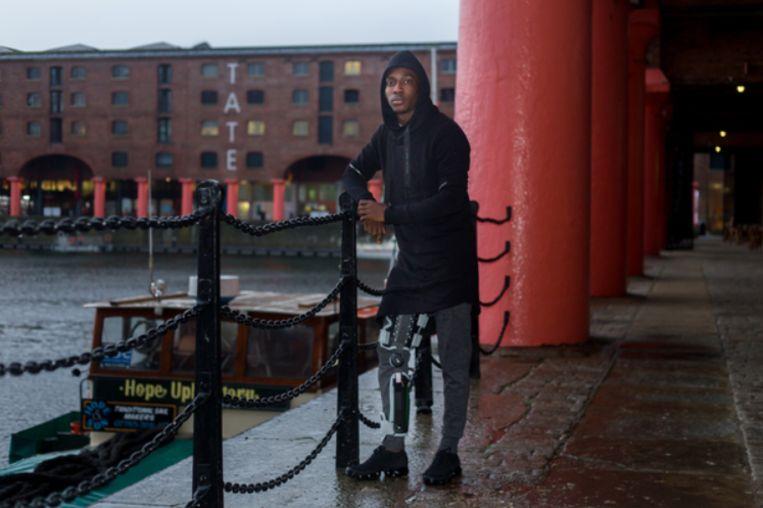 """Met zijn kniebrace in het regenachtige Liverpool. """"In Eupen sneeuwde het vaak, dan zal dit ook wel lukken, zeker?"""""""