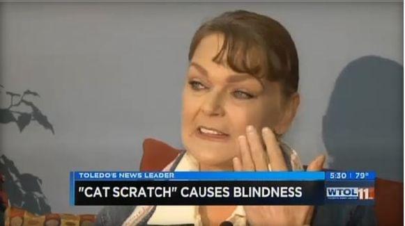 Janese Walters uit Toledo, Ohio zal wellicht blind aan haar linkeroog blijven door een likje van haar kat.