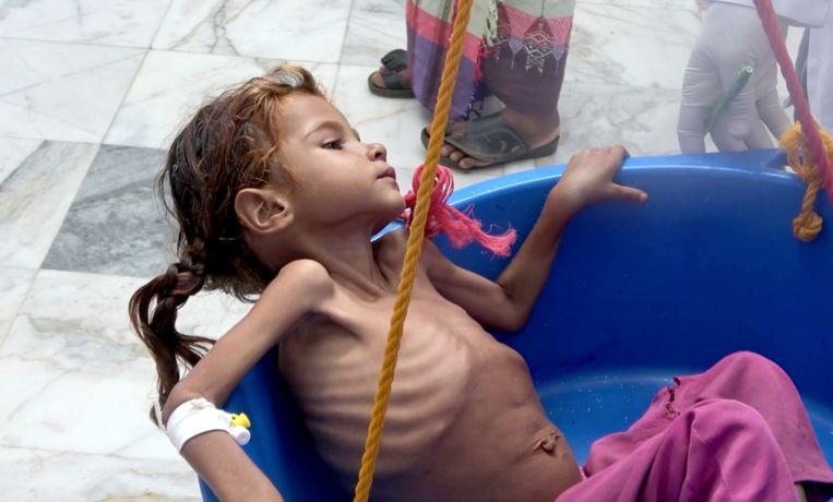 De zevenjarige ondervoede Amal Hussein wordt in augustus gewogen in Jemen. Vorige week werd bekend dat het meisje, dat door een foto in de New York het icoon voor alle hongerende kinderen in Jemen werd, gestorven is.
