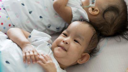 Nima en Dawa verlaten als gescheiden meisjes ziekenhuis waar ze als Siamese tweeling binnenkwamen