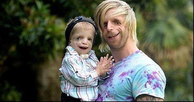 Jono (30) en Zachary (2) lijden allebei aan het Treacher-Collins syndroom, waardoor hun schedel, kaakbeenderen en kin zich niet volledig kunnen ontwikkelen.