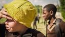 Zambiaans albinomeisje Ruth.