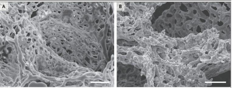 Links zie je normaal gevormde bloedvaten in een gezonde long. Rechts zie je de uitgesproken aantasting van de kleine bloedvaten in een met Covid-19 besmette long.