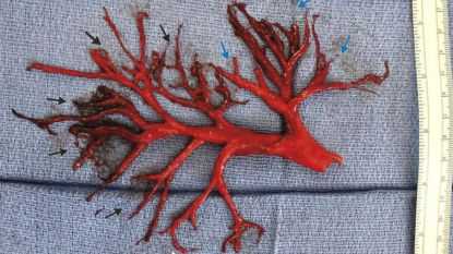 Medische rariteit: patiënt hoest enorme bloedklonter op met exacte vorm van luchtpijptakken