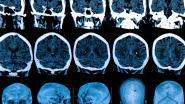 """Covid-19 leidt tot hersenschade, ontdekken Nederlandse onderzoekers: """"Het immuunsysteem slaat op hol"""""""