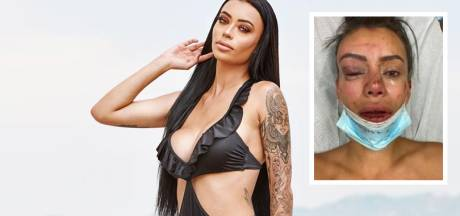 Ex on the Beach-deelneemster Yasmine zwaar mishandeld na feestje