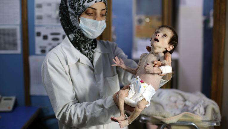Deze verpleegster doet haar uiterste best om deze baby te reden van extreme ondervoeding in de Syrische stad Hamouria.