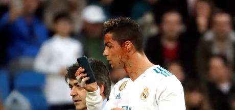 IJdele Ronaldo bekijkt hoofdwond via selfiecamera