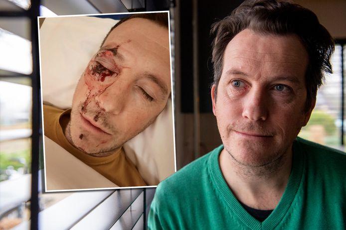 René Paquot hield blijvend letsel over aan zijn rechteroog na de mishandeling.