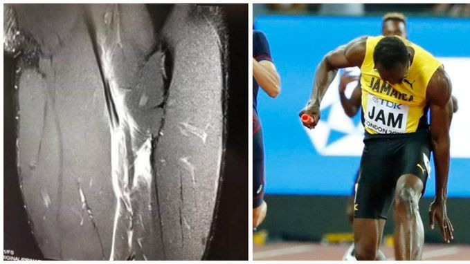 Kramp? Niks te kramp: Usain Bolt liep spierscheur op bij afscheid op WK in Londen