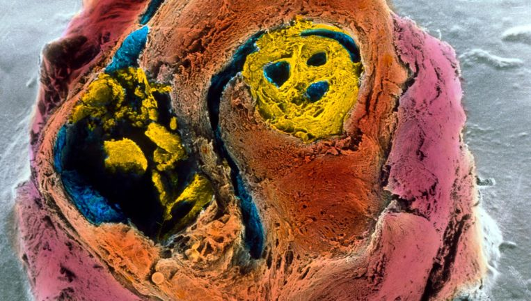 Een doorsnede van een kransslagader. De gele vlekken geven aan waar een verstopping dreigt. Beeld anp