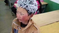 Goed doel haalt 63.700 euro op voor bevroren jongetje, maar geeft hem slechts 1.000