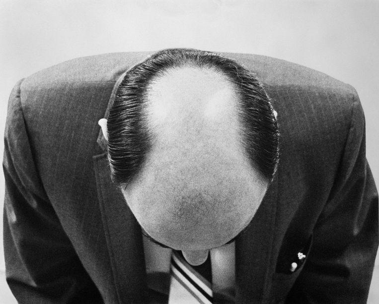'Sommige mannen denken dat het begon met een terugtrekkende haargrens of juist op de kruin, maar het begint vaak op beide plekken tegelijk.' Beeld Getty