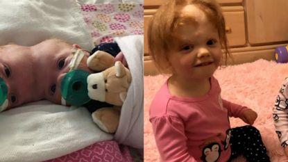 VIDEO. Erin en Abby waren in juni 2017 nog een siamese tweeling, zo zien ze er nu uit