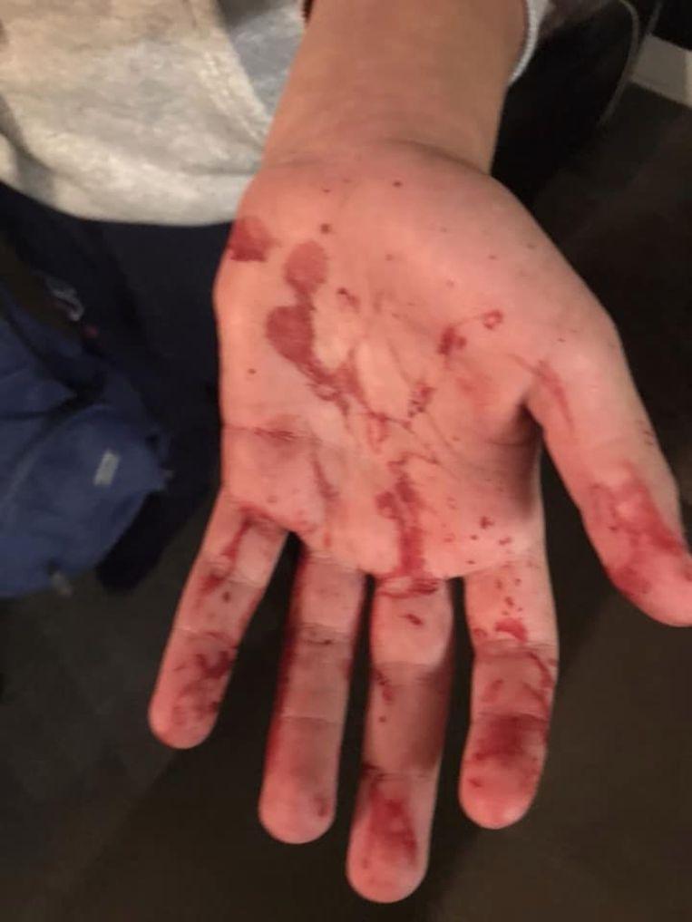 Gilles (13) werd aangevallen in het Zuidpark.